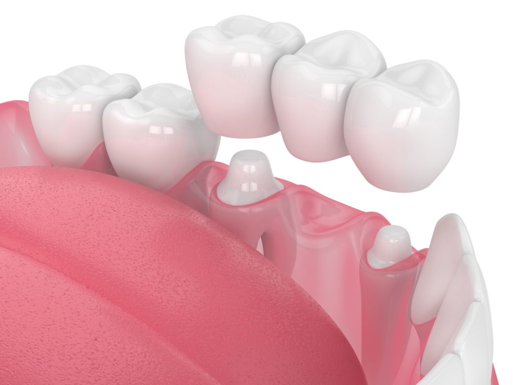 Illustration of a row of teeth with a dental crown/bridge being placed in the mouth