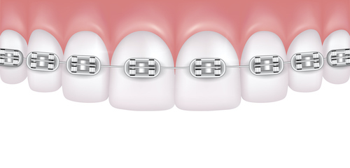 Illustration of a row of teeth with metal braces attached