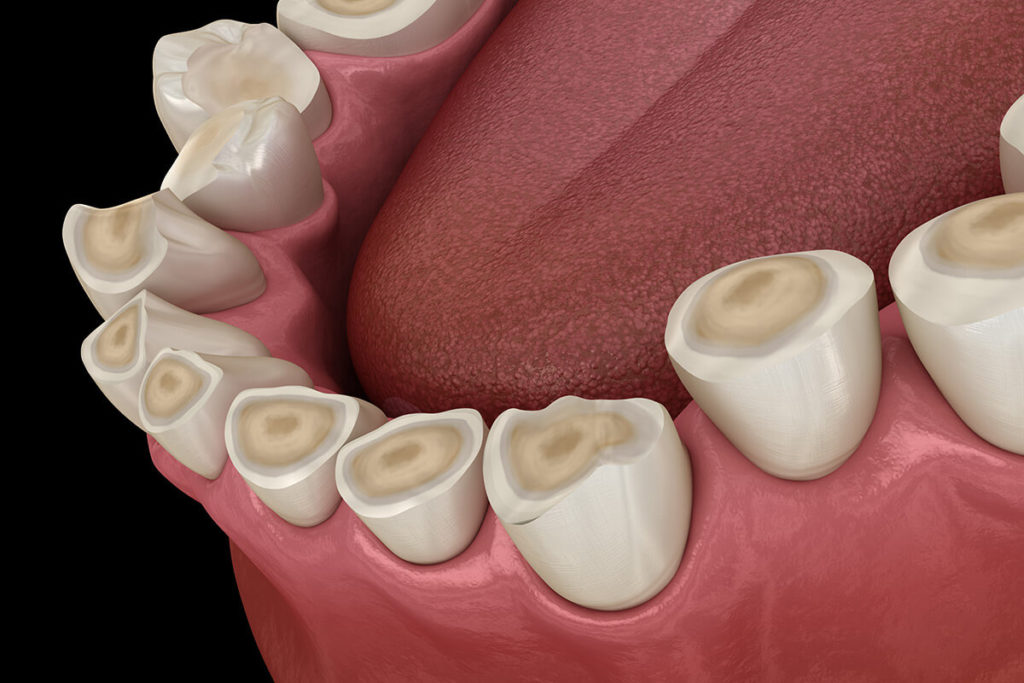 Illustration of chipped and cracked teeth after teeth grinding